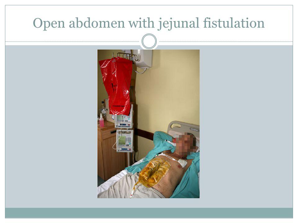 Open abdomen with jejunal fistulation