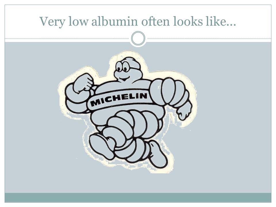 Very low albumin often looks like...