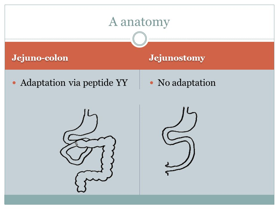 Jejuno-colon Jejunostomy Adaptation via peptide YY No adaptation A anatomy
