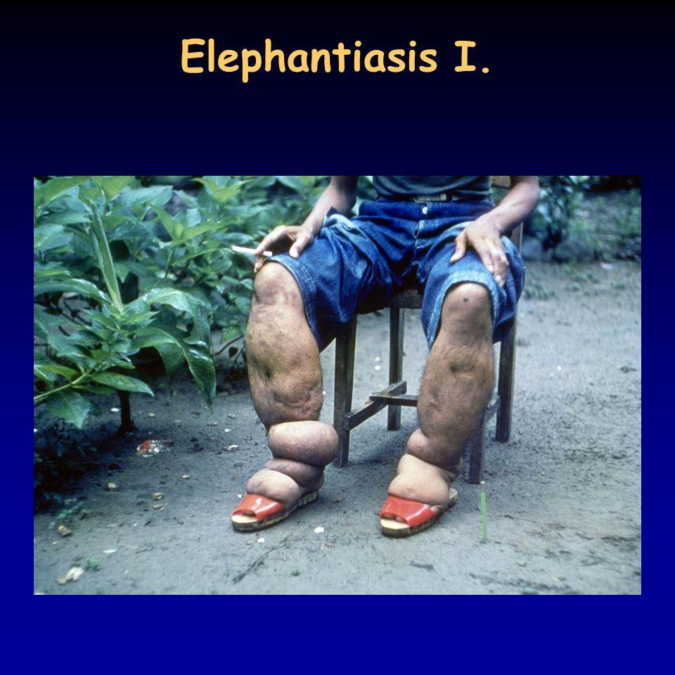 Elephantiasis I.