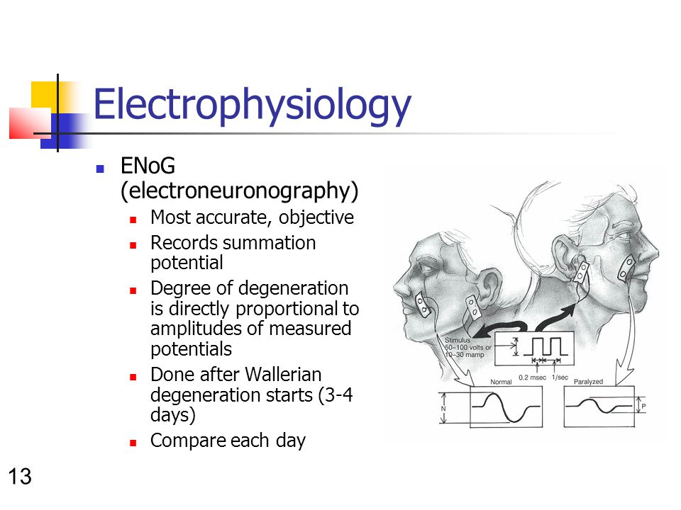 13 Electrophysiology ENoG (electroneuronography) Most accurate, objective Records summation potential Degree of degeneration is directly proportional to amplitudes of measured potentials Done after Wallerian degeneration starts (3-4 days) Compare each day