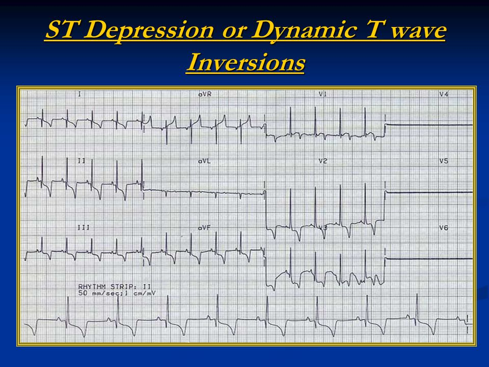ST Depression or Dynamic T wave Inversions