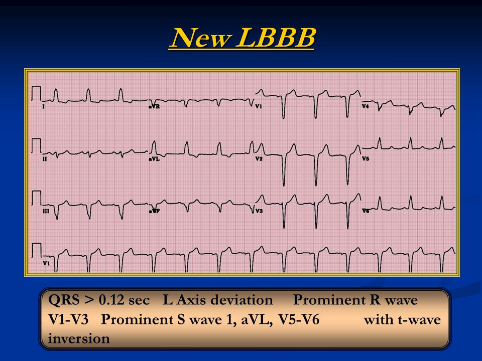 New LBBB QRS > 0.12 sec L Axis deviation Prominent R wave V1-V3 Prominent S wave 1, aVL, V5-V6 with t-wave inversion