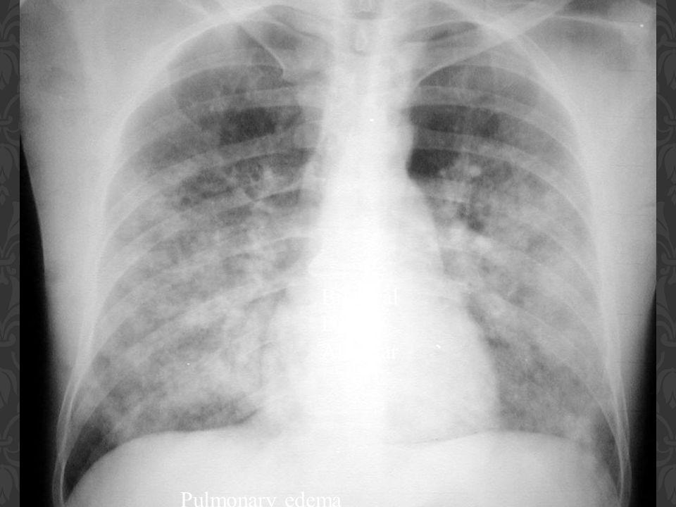 Pulmonary edema Bilateral Diffuse Alveolar