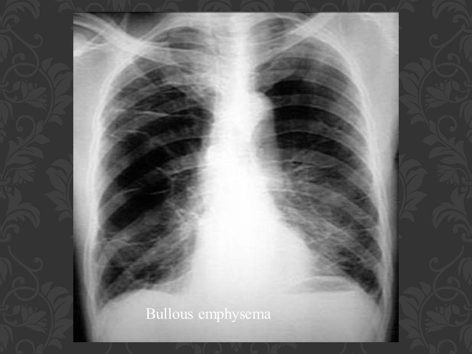 Bullous emphysema