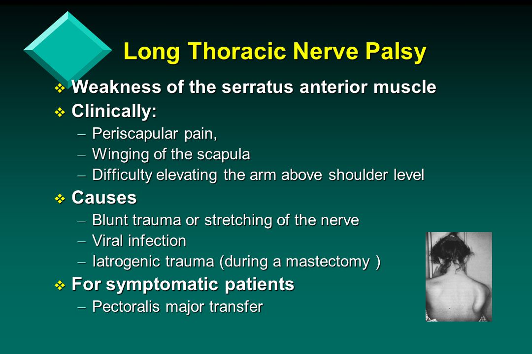 Long Thoracic Nerve Palsy  Weakness of the serratus anterior muscle  Clinically:  Periscapular pain,  Winging of the scapula  Difficulty elevatin