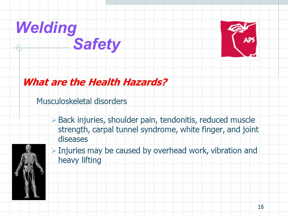 16 Welding Safety What are the Health Hazards? Musculoskeletal disorders  Back injuries, shoulder pain, tendonitis, reduced muscle strength, carpal t