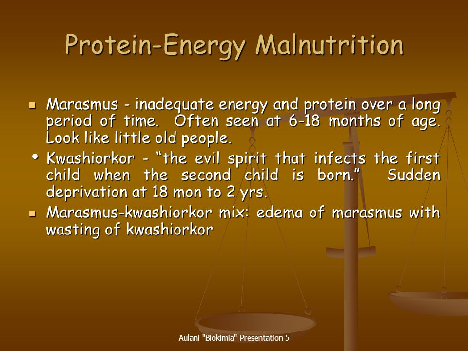Aulani Biokimia Presentation 5 Protein-Energy Malnutrition (PEM) Acute PEM when one is recently deprived of food.