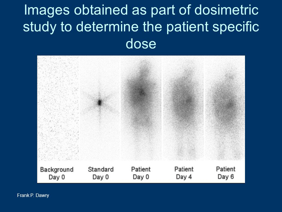 Frank P. Dawry Images obtained as part of dosimetric study to determine the patient specific dose