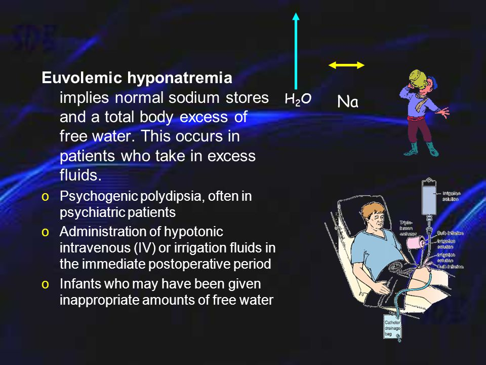 Hypovolemic hyponatremia - sodium and free water are lost and replaced by inappropriately hypotonic fluids, such as tap water, half-normal saline, or dextrose in water oExcess fluid losses (eg, vomiting, diarrhea, excessive sweating, GI fistulas or drainage tubes, pancreatitis, burns) that have been replaced primarily by hypotonic fluids oAcute or chronic renal insufficiency oSalt-wasting nephropathy oCerebral salt-wasting syndrome H2OH2ONa H2OH2O