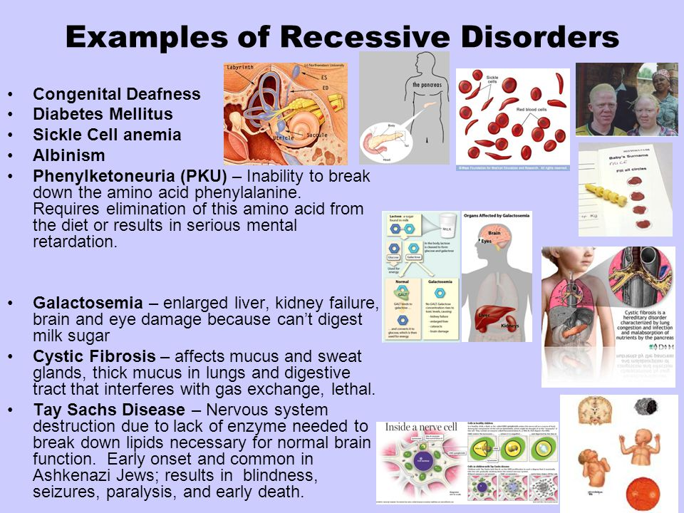 Examples of Recessive Disorders Congenital Deafness Diabetes Mellitus Sickle Cell anemia Albinism Phenylketoneuria (PKU) – Inability to break down the amino acid phenylalanine.
