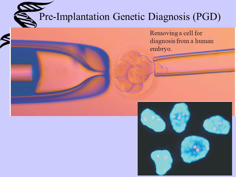 Pre-Implantation Genetic Diagnosis (PGD) Removing a cell for diagnosis from a human embryo.