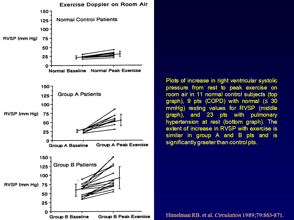 Plots of increase in right ventricular systolic pressure from rest to peak exercise on room air in 11 normal control subjects (top graph), 9 pts (COPD