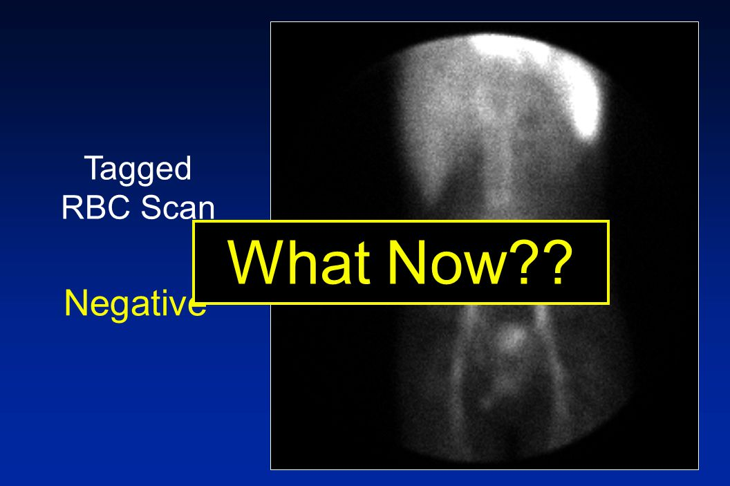 Tagged RBC Scan Negative What Now