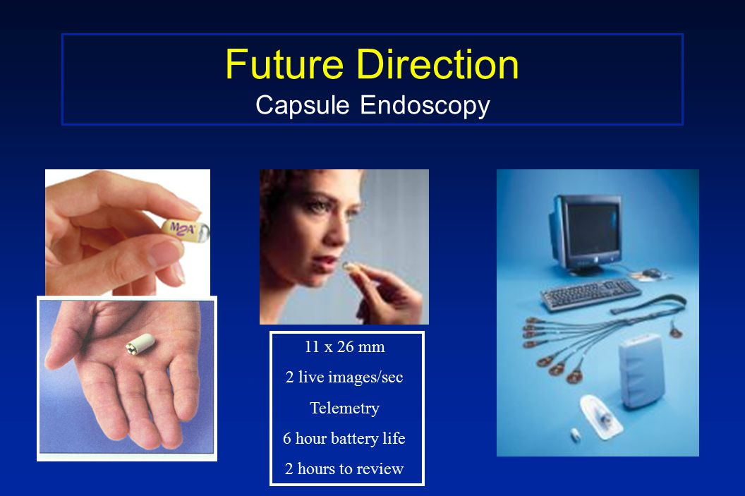 Future Direction Capsule Endoscopy 11 x 26 mm 2 live images/sec Telemetry 6 hour battery life 2 hours to review