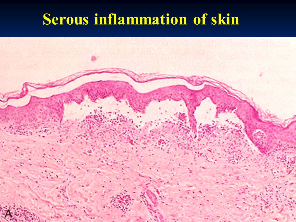 Serous inflammation of skin