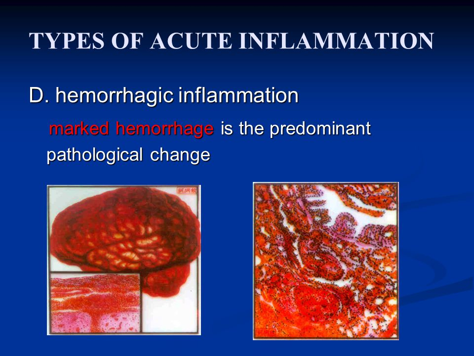 TYPES OF ACUTE INFLAMMATION D. hemorrhagic inflammation marked hemorrhage is the predominant pathological change marked hemorrhage is the predominant