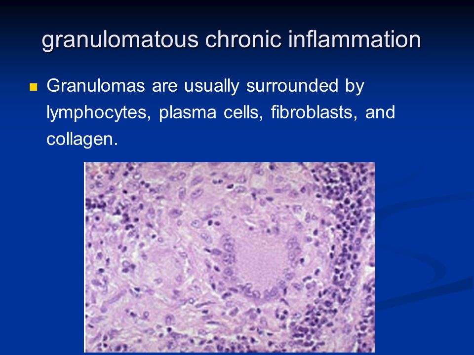 granulomatous chronic inflammation Granulomas are usually surrounded by lymphocytes, plasma cells, fibroblasts, and collagen.