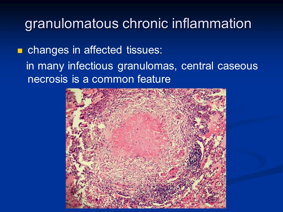 granulomatous chronic inflammation changes in affected tissues: in many infectious granulomas, central caseous necrosis is a common feature