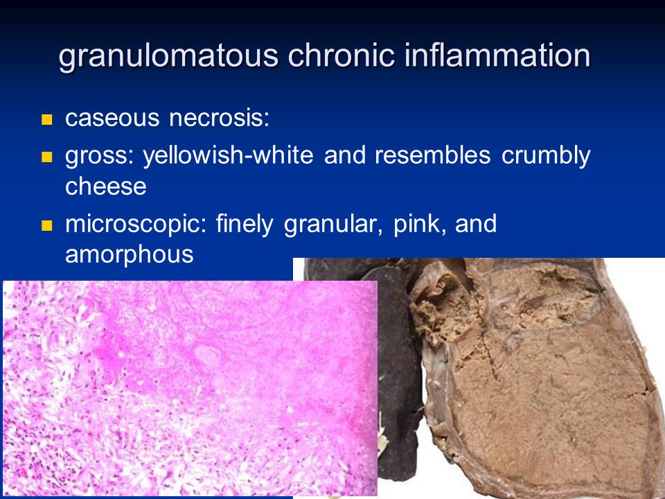 granulomatous chronic inflammation caseous necrosis: gross: yellowish-white and resembles crumbly cheese microscopic: finely granular, pink, and amorp