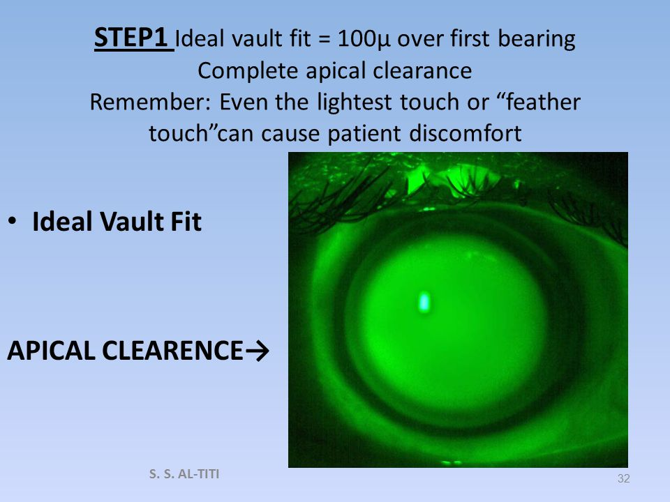 STEP 1 If central bearing is seen, increase the vault in 50 TO 100μ increments, until apical clearance is achieved. VAULT TOO SHALOW 31 S. S. AL-TITI