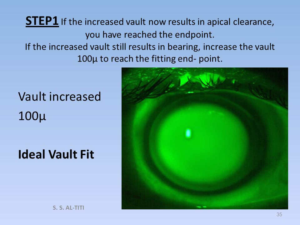 STEP 1 When first bearing is observed – increase the vault by 100μ and re- evaluate the corneal clearance for apical clearance. Vault decreased 100μ V