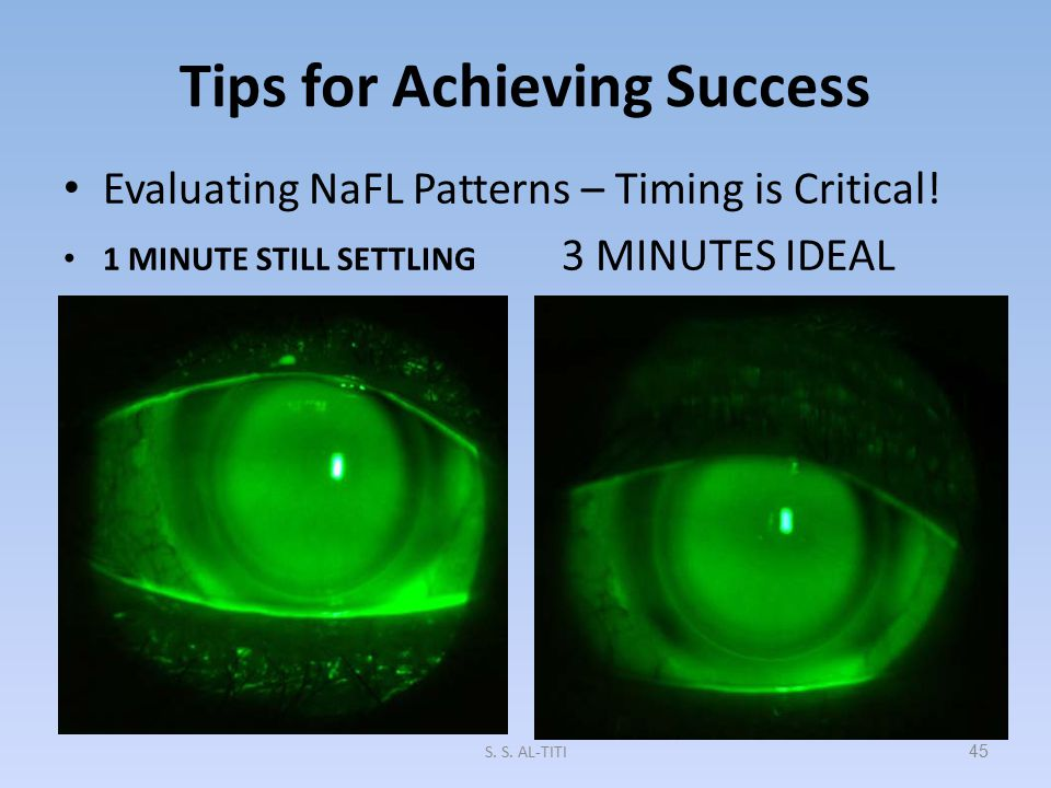 Step 3: Determine Final Lens Power When an ideal NaFL pattern is achieved, over- refract to determine final lens power If the over-refraction is great