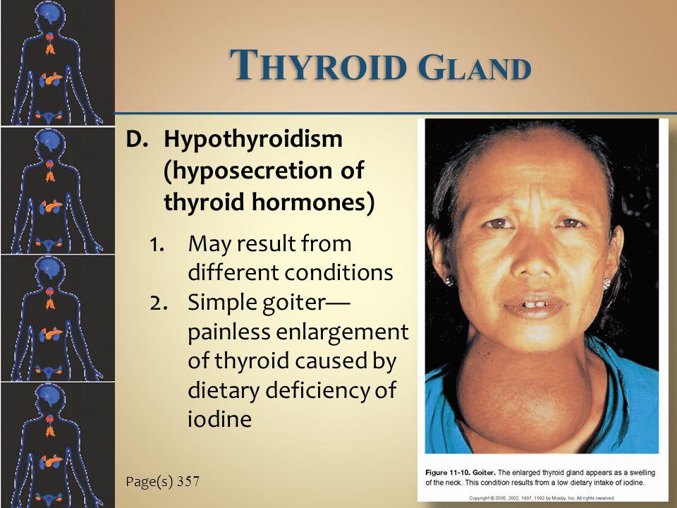 T HYROID G LAND Page(s) 357 D.Hypothyroidism (hyposecretion of thyroid hormones) 1.