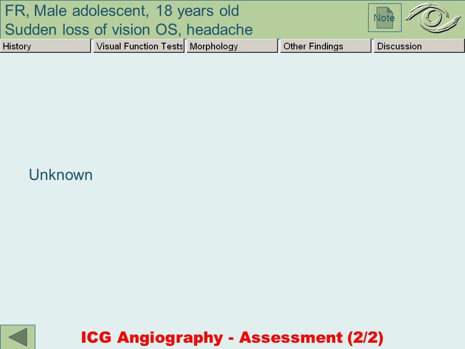 FR, Male adolescent, 18 years old Sudden loss of vision OS, headache Note Unknown ICG Angiography - Assessment (2/2)