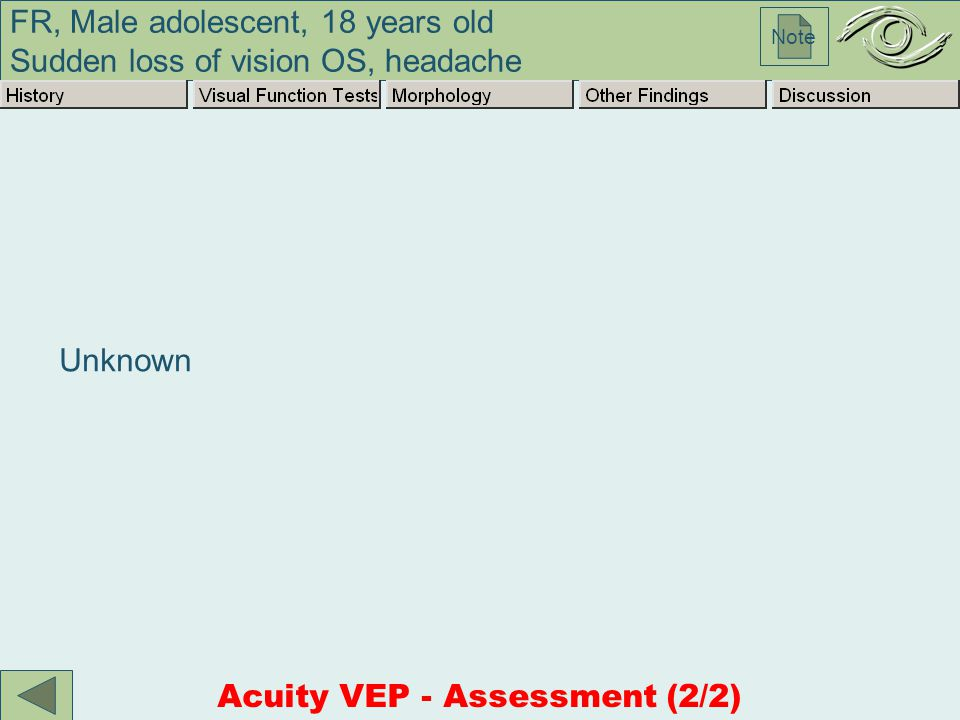 FR, Male adolescent, 18 years old Sudden loss of vision OS, headache Note Unknown Acuity VEP - Assessment (2/2)