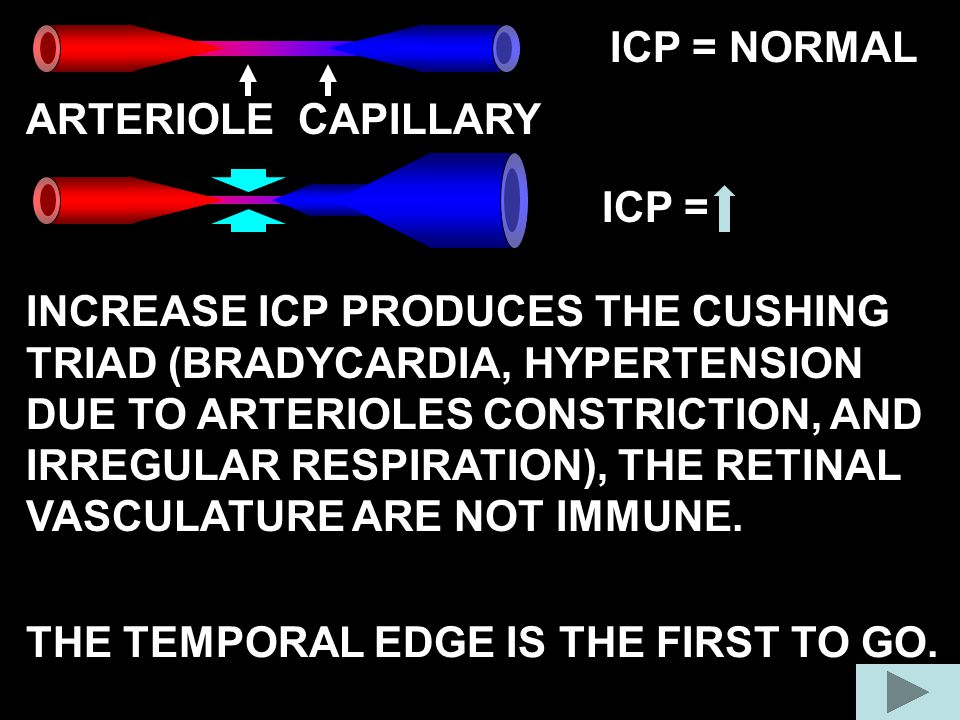 ICP = NORMAL ICP = ARTERIOLE INCREASE ICP PRODUCES THE CUSHING TRIAD (BRADYCARDIA, HYPERTENSION DUE TO ARTERIOLES CONSTRICTION, AND IRREGULAR RESPIRAT