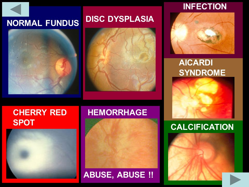 NORMAL FUNDUS DISC DYSPLASIA CHERRY RED SPOT HEMORRHAGE AICARDI SYNDROME INFECTION CALCIFICATION ABUSE, ABUSE !!