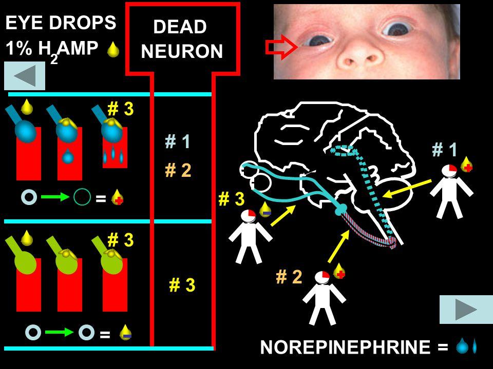 = = 1% H AMP 2 NOREPINEPHRINE = DEAD # 3 # 2 # 1 NEURON # 1 # 2 # 3 EYE DROPS # 3