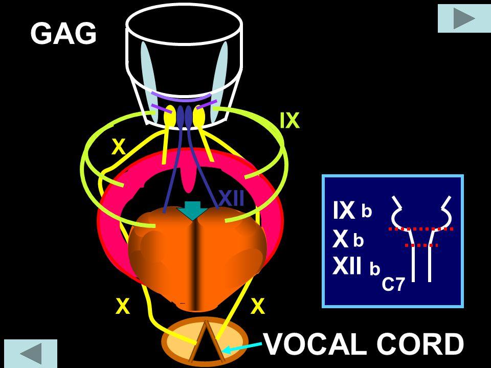 GAG X IX XII C7 X IX XII b b b XX VOCAL CORD