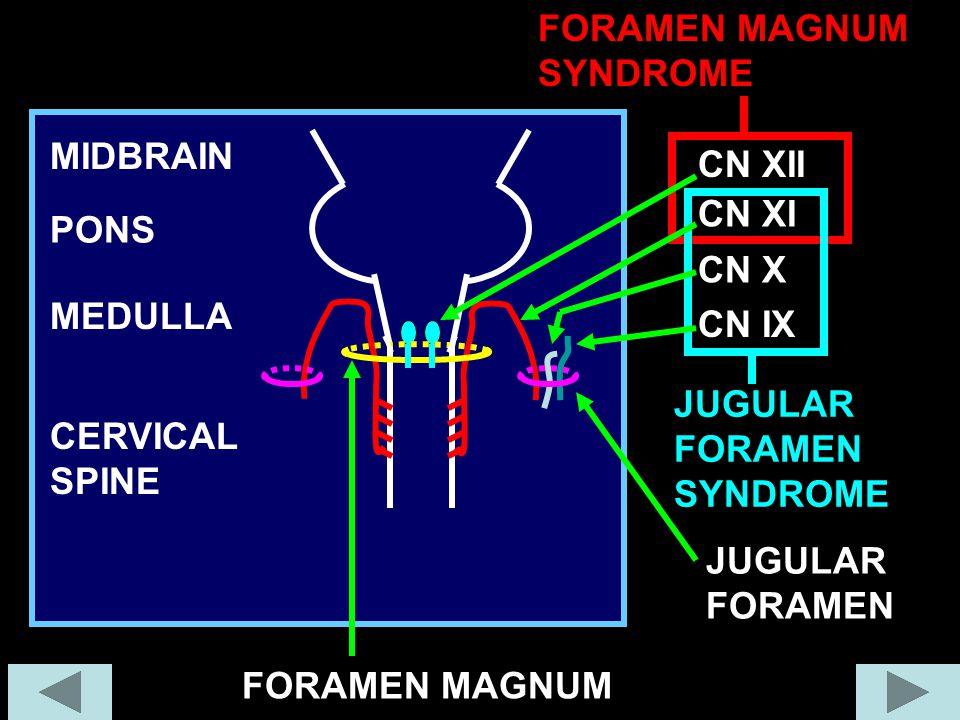 PONS MEDULLA MIDBRAIN CERVICAL SPINE JUGULAR FORAMEN FORAMEN MAGNUM CN XI CN X CN IX CN XII FORAMEN MAGNUM SYNDROME JUGULAR FORAMEN SYNDROME