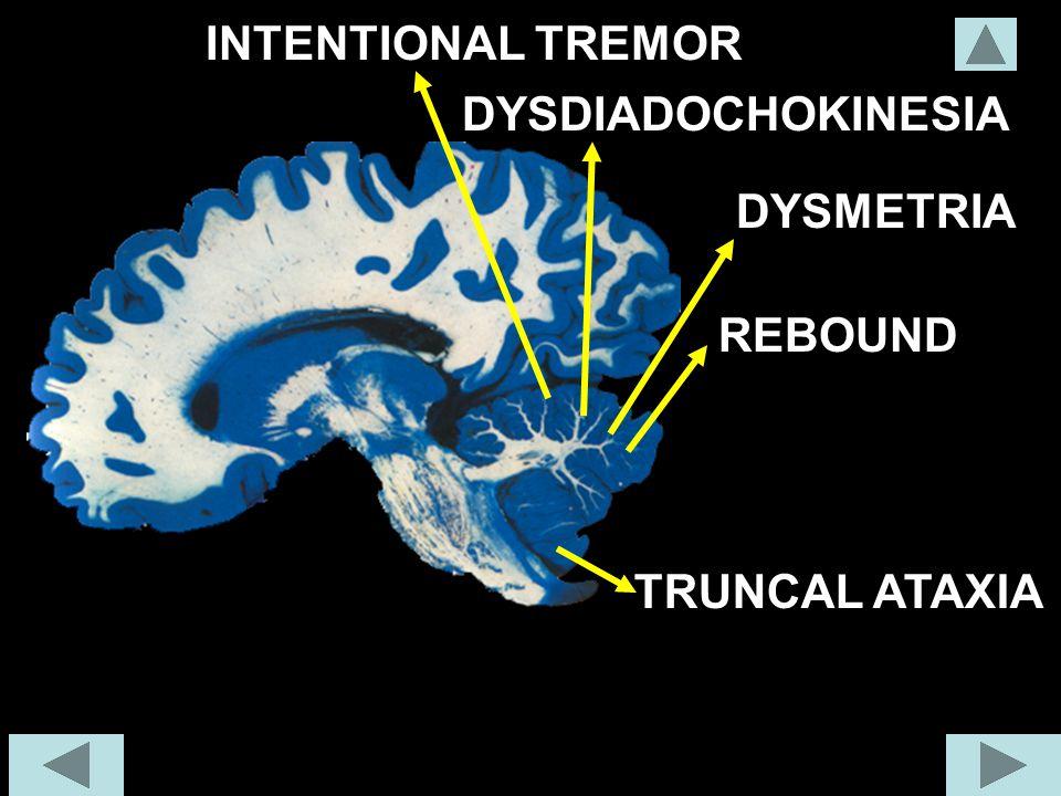 TRUNCAL ATAXIA INTENTIONAL TREMOR DYSDIADOCHOKINESIA DYSMETRIA REBOUND