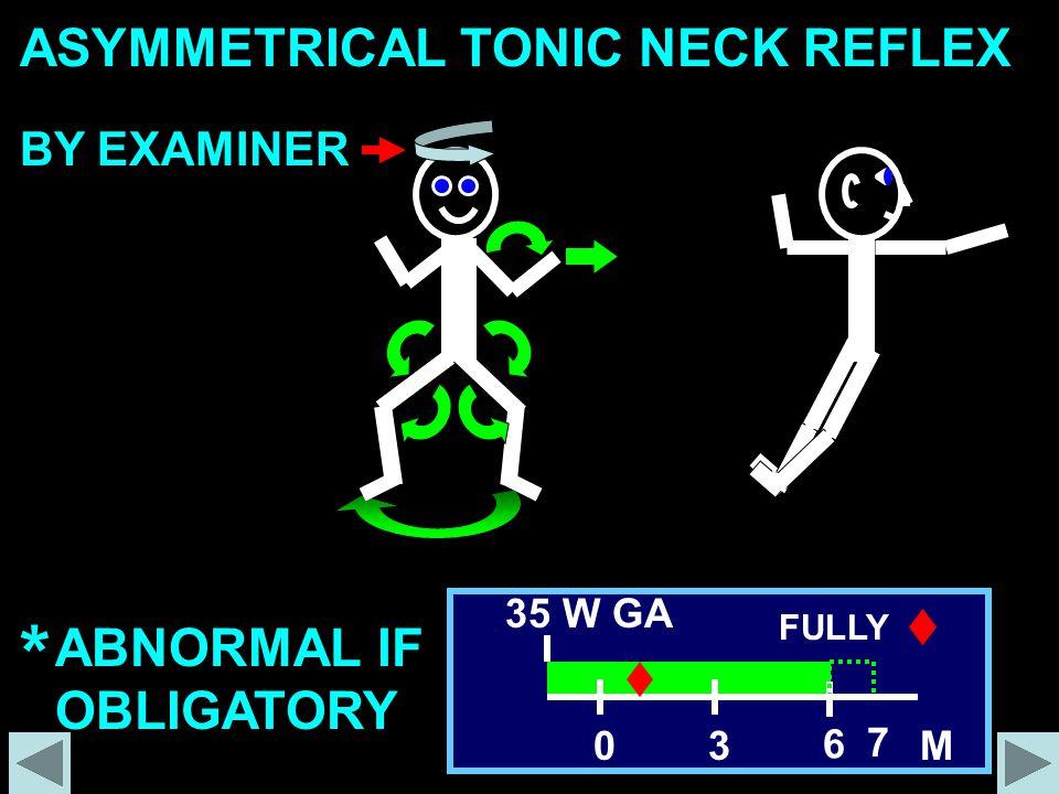 ASYMMETRICAL TONIC NECK REFLEX * ABNORMAL IF OBLIGATORY 30 6 7 35 W GA FULLY M BY EXAMINER