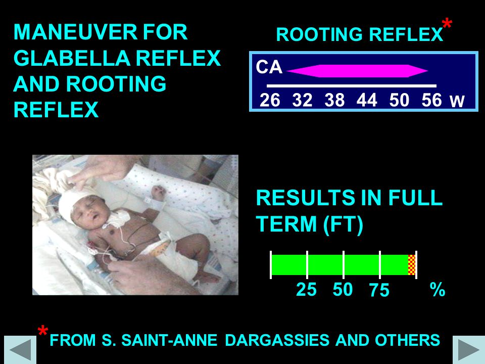 ROOTING REFLEX 263238445056 W CA 2550 75 % RESULTS IN FULL TERM (FT) MANEUVER FOR GLABELLA REFLEX AND ROOTING REFLEX * FROM S. SAINT-ANNE DARGASSIES A