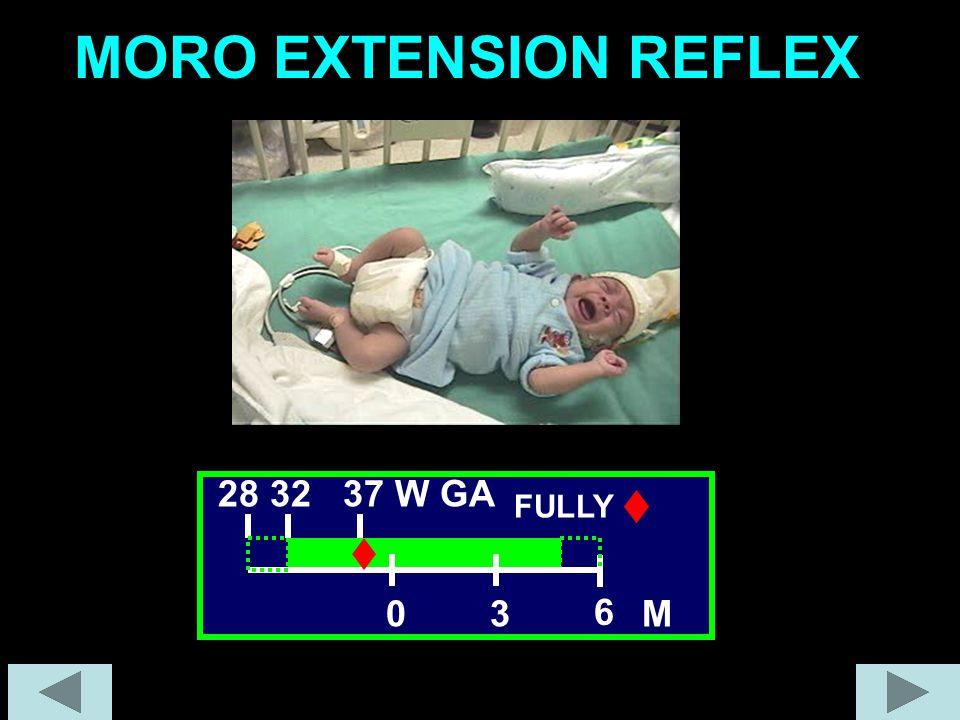 MORO EXTENSION REFLEX 30 6 28 32 37 W GA FULLY M