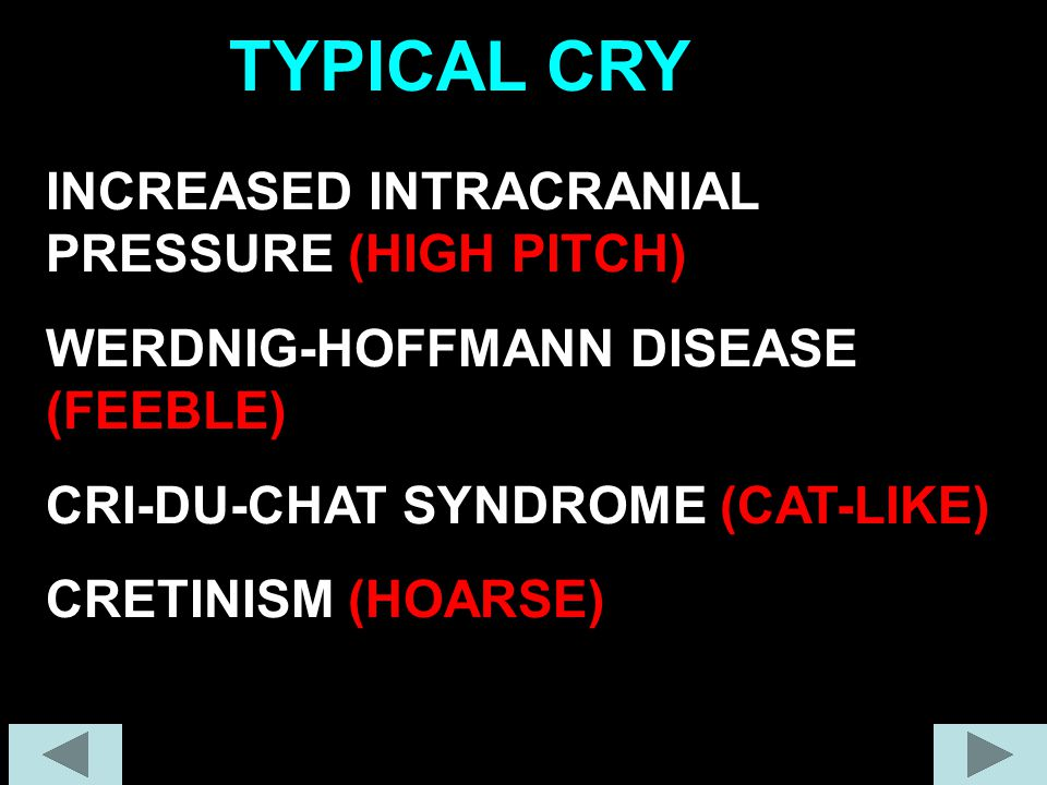 INCREASED INTRACRANIAL PRESSURE (HIGH PITCH) WERDNIG-HOFFMANN DISEASE (FEEBLE) CRI-DU-CHAT SYNDROME (CAT-LIKE) CRETINISM (HOARSE) TYPICAL CRY