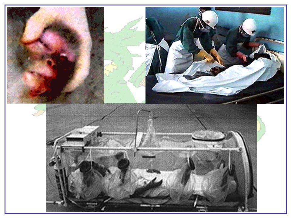 """Elementis Regamus Proelium"" Hemorrhagic Fevers Crimean-Congo, Hantavirus, Ebola, Yellow Fever Symptoms include fever, muscular pain, lack of strength"