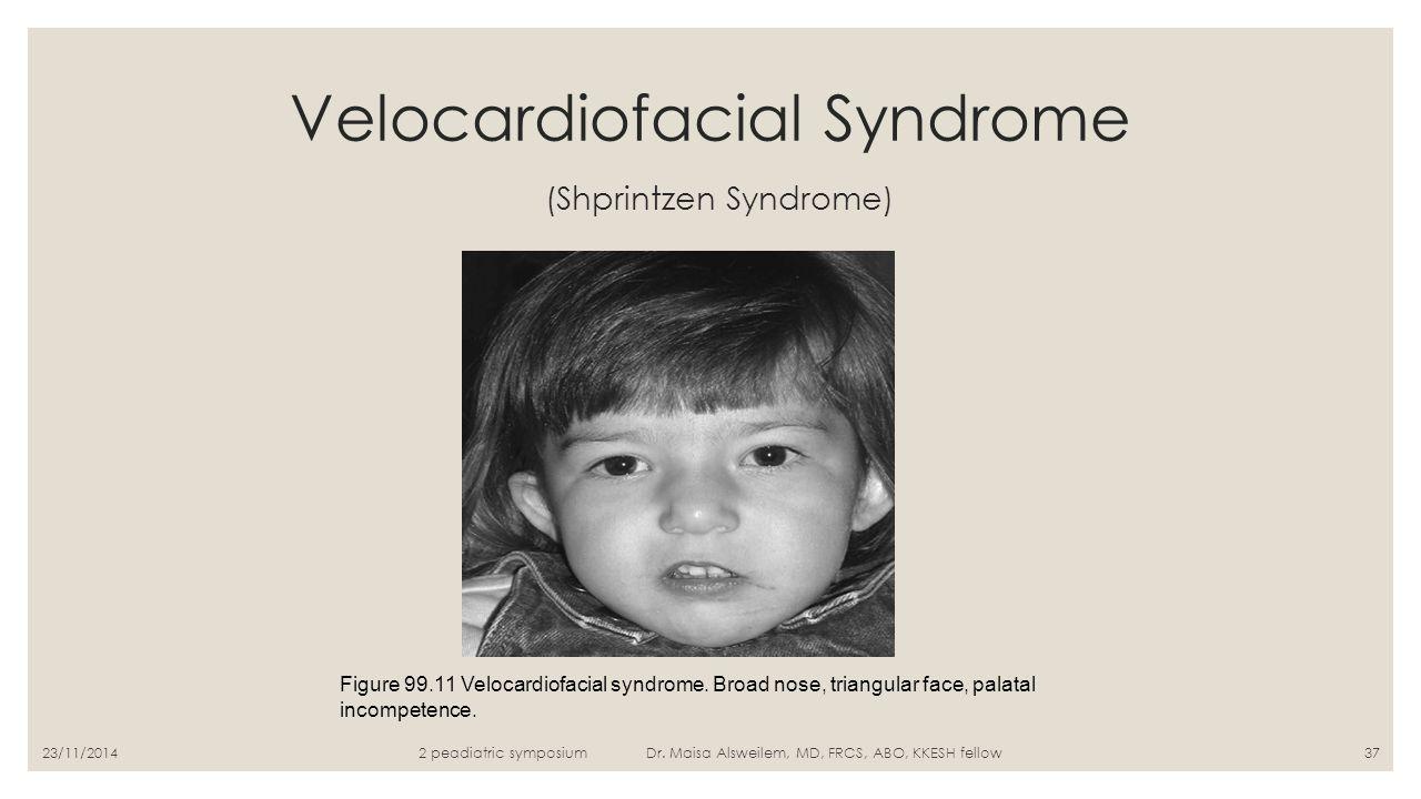 Velocardiofacial Syndrome (Shprintzen Syndrome) Figure 99.11 Velocardiofacial syndrome. Broad nose, triangular face, palatal incompetence. 2 peadiatri