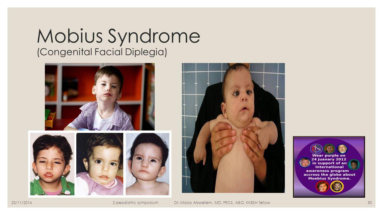 Mobius Syndrome (Congenital Facial Diplegia) 2 peadiatric symposium Dr. Maisa Alsweilem, MD, FRCS, ABO, KKESH fellow5023/11/2014