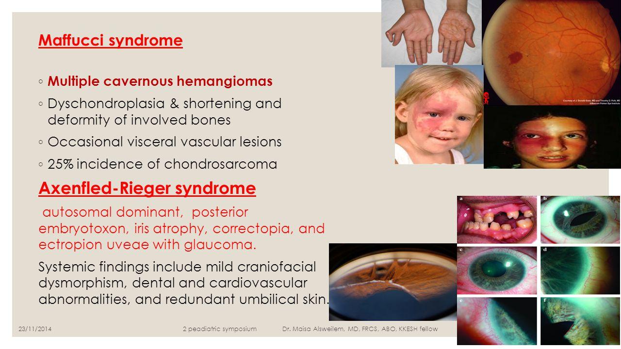 Maffucci syndrome ◦ Multiple cavernous hemangiomas ◦ Dyschondroplasia & shortening and deformity of involved bones ◦ Occasional visceral vascular lesi