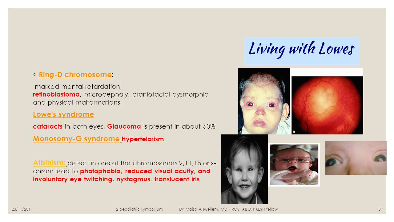 ◦ Ring-D chromosome: Ring-D chromosome marked mental retardation, retinoblastoma, microcephaly, craniofacial dysmorphia and physical malformations. Lo