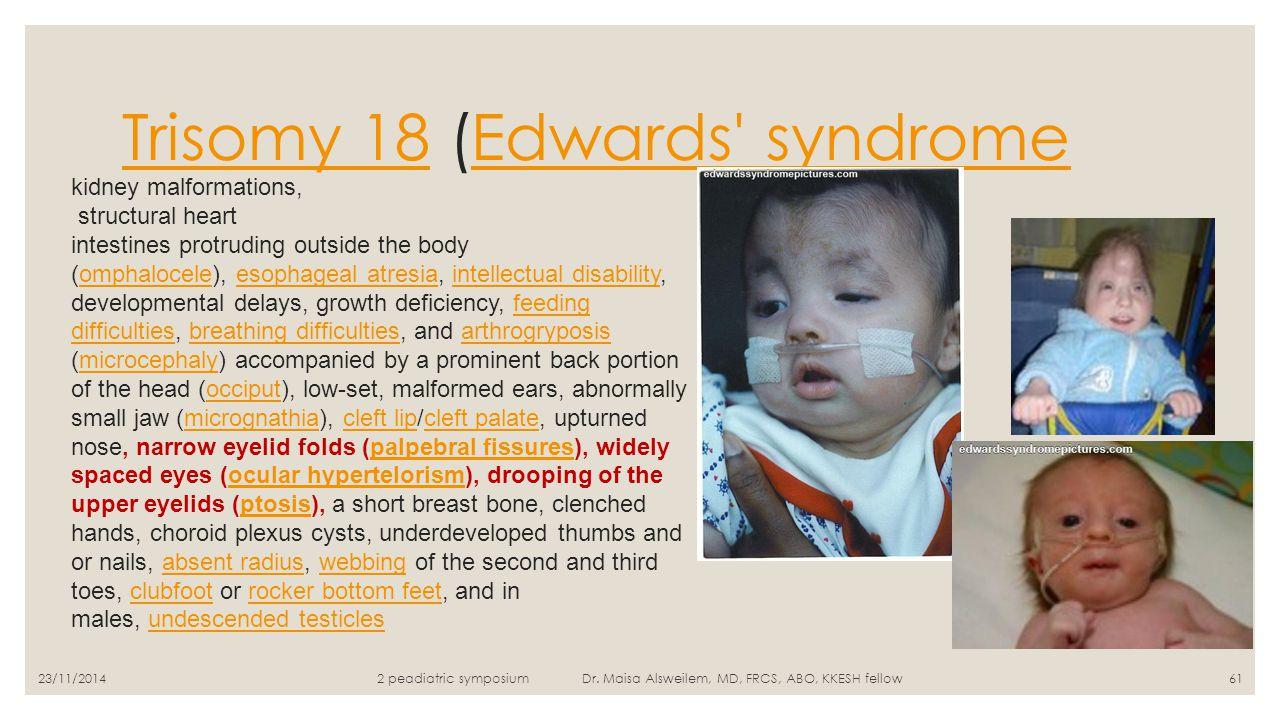 Trisomy 18Trisomy 18 (Edwards' syndromeEdwards' syndrome 23/11/20142 peadiatric symposium Dr. Maisa Alsweilem, MD, FRCS, ABO, KKESH fellow61 kidney ma