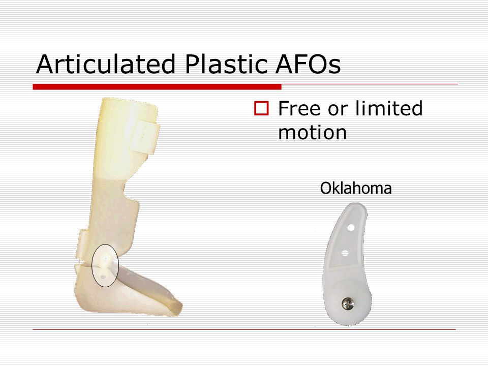 Articulated Plastic AFOs  Free or limited motion Oklahoma