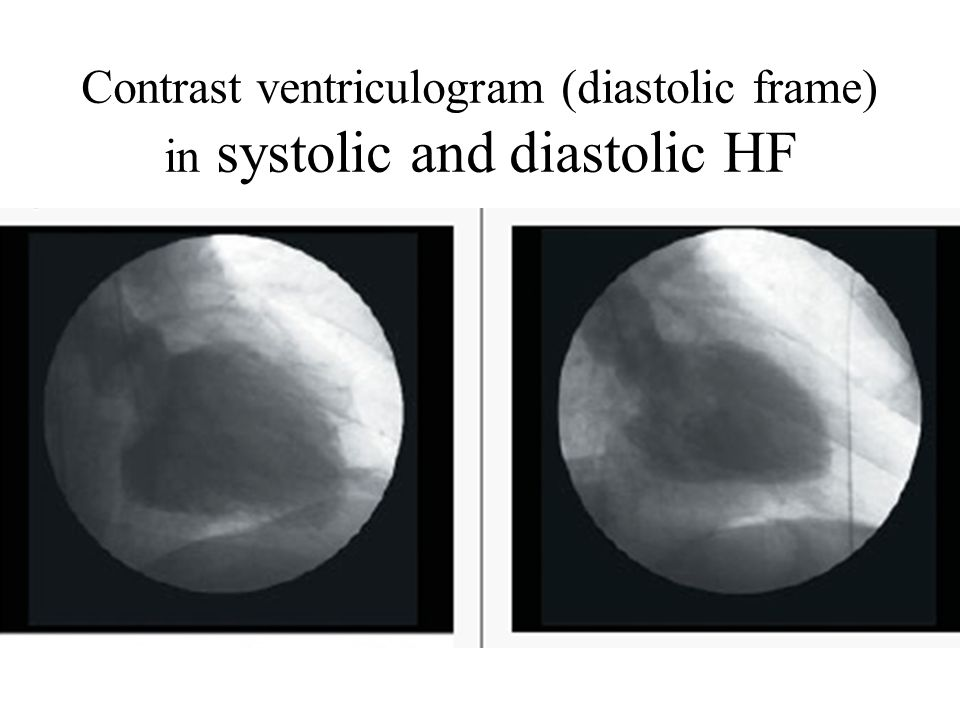 Contrast ventriculogram (diastolic frame) in systolic and diastolic HF