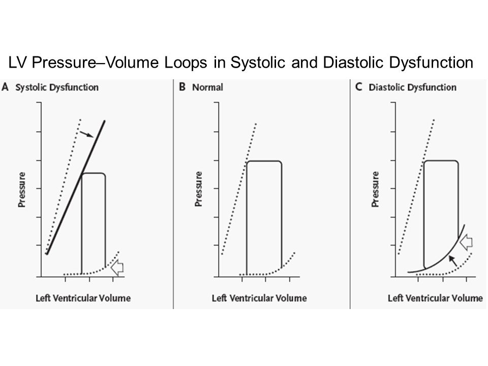 LV Pressure–Volume Loops in Systolic and Diastolic Dysfunction