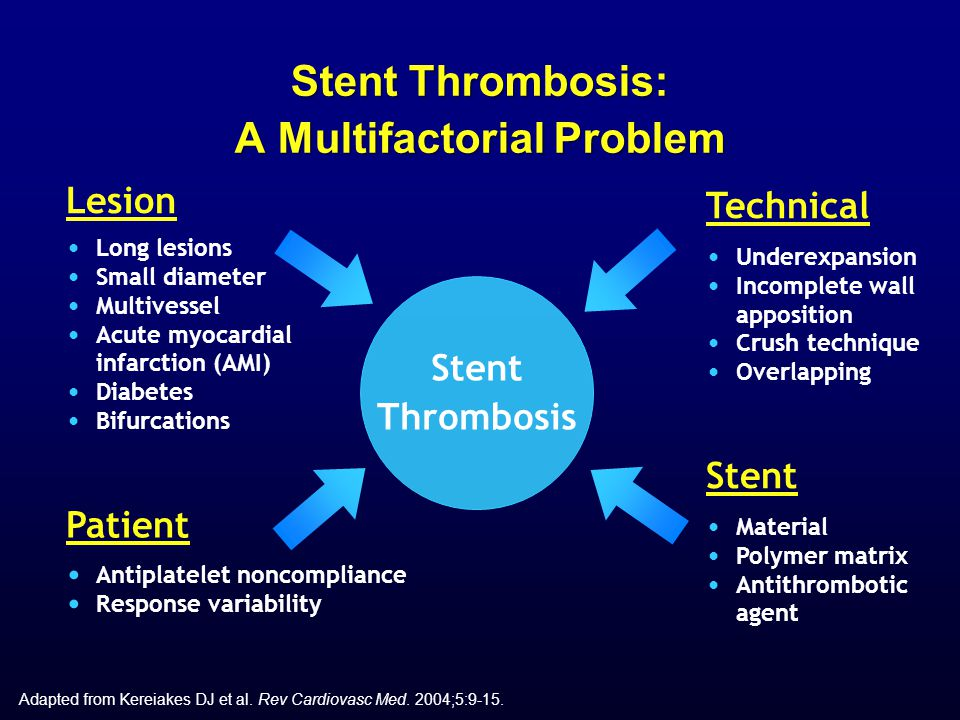 Patient Antiplatelet noncompliance Response variability Stent Thrombosis Adapted from Kereiakes DJ et al. Rev Cardiovasc Med. 2004;5:9-15. Stent Throm